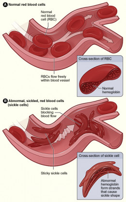 Illustration comparing healthy red blood cells and sickle-cells.
