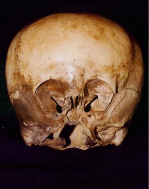 "Despite DNA testing confirming it has two human parents, believers still say the ""Star Child"" skull is proof of alien-human hybrids."