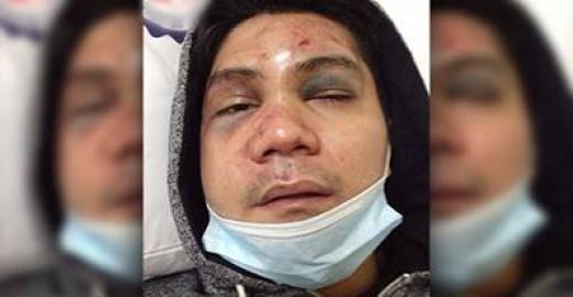The mauled face of Ferdinand 'Vhong' Navarro (Photo Source: http://www.abs-cbnnews.com/)