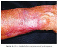 The Pathology, Causes Clinical Manifestations And The Complete Course Of Treatment Of Polycythemia