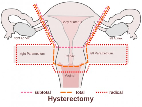 A chart of the uterus.