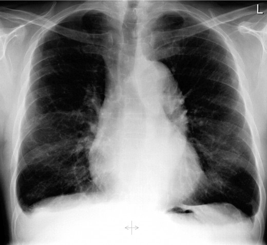 Lung diseases caused by smoking