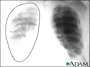 Prompt identification and treatment of traumatic hemothorax is an essential part of the care of the injured patient. The upright chest radiograph is the ideal primary diagnostic study in the evaluation of hemothorax