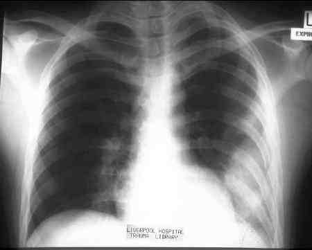 Traumatic disruption of the chest wall tissues with violation of the pleural membrane can cause bleeding into the pleural cavity. The most likely sources of significant or persistent bleeding from chest wall injuries are the intercostal and internal