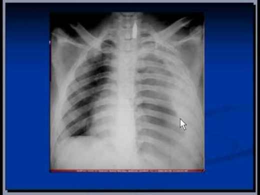 Massive hemothorax or exsanguinating hemorrhage may result from injury to major arterial or venous structures contained within the thorax or from the heart itself.