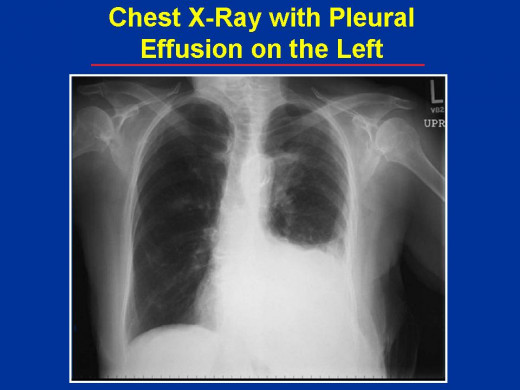 Blunt chest trauma can occasionally result in hemothorax by laceration of internal vessels. Because of the relatively more elastic chest wall of infants and children, rib fractures may be absent in such cases