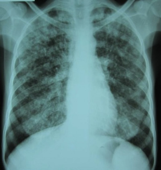 A chest X-ray and multiple sputum cultures for acid-fast bacilli are typically part of the initial evaluation. Interferon-γ release assays and tuberculin skin tests are of little use in the developing world.