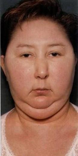 Facial syndrome Mia