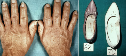 The onset is insidious. There is increase in soft tissues and bones of the hands, feet and skull. The face is elongated and the features are coarse. Lips, tongue, nose, salivary glands and lacrimal glands are enlarged.