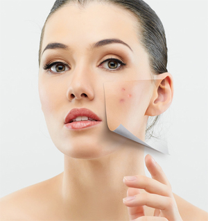 There are several ways to help reduce the number and severity of your breakouts.