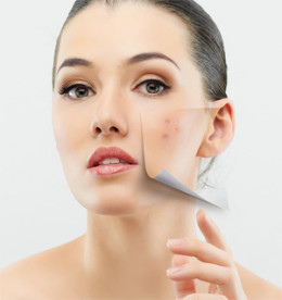 Long Term Tips to Get Rid of Blemishes on face
