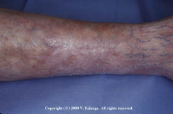 Polyarteritis Nodosa And Reiter's Disease: Diagnosis, Clinical Presentation, Management And Treatment