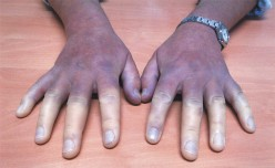 Progressive Systemic Sclerosis (PSS): Slceroderma, Its Clinical Relevance, Diagnosis And Presentations