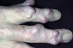 Scleroderma: Clinical And Physical Presentations, Prognosis And Treatment As A Progressive Systemic Slcerosis Disease