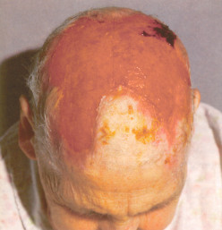 Giant Cell Arteritis (Temporal Arteritis, Cranial Arteritis) And Miscellaneous Connective Tissue Syndromes