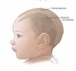 Microcephaly – Pictures, Life Expectancy, Causes, Symptoms, Treatment