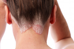 Psoriasis: Clinical Presentation, Diagnosis And Treatment