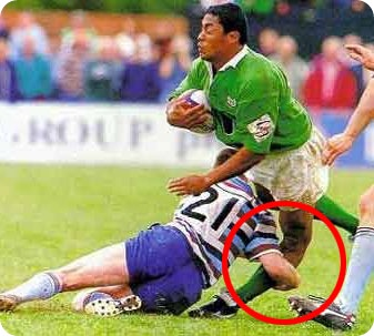A common way that ACL's are ruptured in Rugby