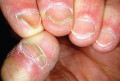 Iron Deficiency: Causes, Clinical Manifestations, Prevention And Siderosis
