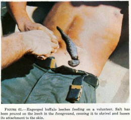 A smallish Buffalo Leech being removed by salt poisoning from a volunteer's back.  Would you do that?
