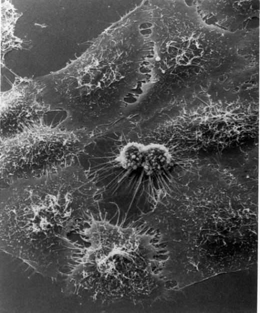 HeLa cells dividing under electron microscopy