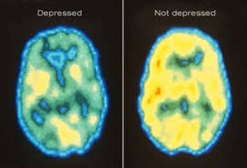 A brain study showing one brain with no issues and another brain suffering from Chronic Depression.  Depression is a serious problem that has always ben studied by scientists.