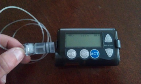 Insulin pumps are often required to treat Type 1 diabetes patients