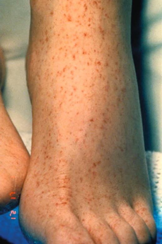 Tick-borne Diseases, Relapsing Fever - Medscape Reference