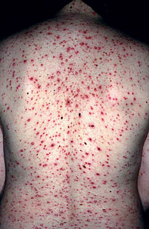 chicken pox and epidemiology Risk factors for chicken pox (varicella zoster virus) vaccine-era varicella epidemiology and vaccine effectiveness in a public elementary school population, 2002-2007 pediatrics 2008121(6):e1548-54 abstract | full text.