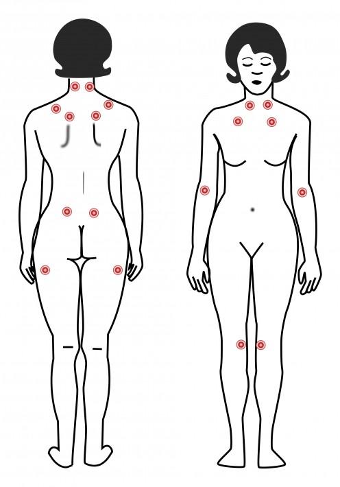 How I Beat Fibromyalgia
