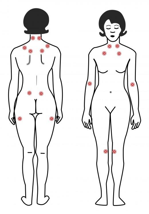 Fibromyalgian Kipupisteet