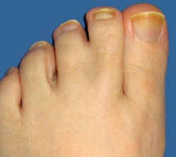 Webbed toes or fingers occurs in 2,000-2,500 human births. Normally, believing that humans have no current use for webbing, surgeons separate the appendages when the child is still young.