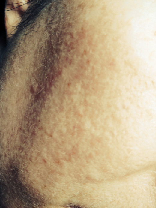 There are many dermotologist approved methods for removing brown spots.