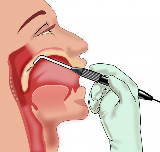 Illustration of mouth and throat surgery which can help in treating sleep apnea.