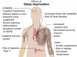A List of Sleeping Disorders