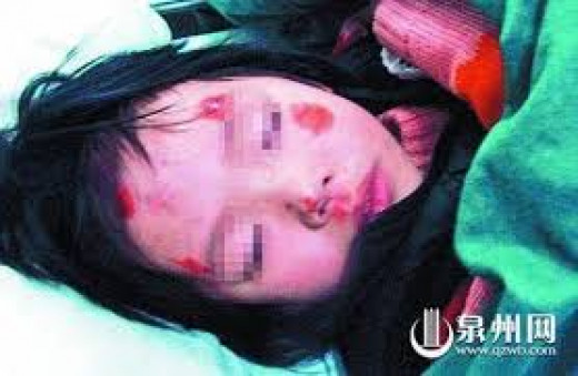 A 3-year-old Chinese girl was beaten and thrown from a taxi by her father, Gan X (May 2013)