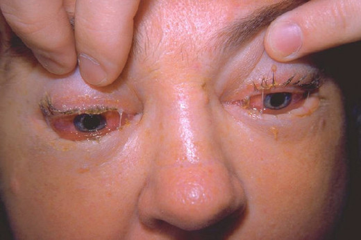 Larval dissemination starts around the seventh day and is marked by urticarial rash, remittent fever, edema of the eyelids, conjunctivitis and subungual splinter hemorrhages. Neurological manifestations include polyneuritis, Polio-like paralysis, mya