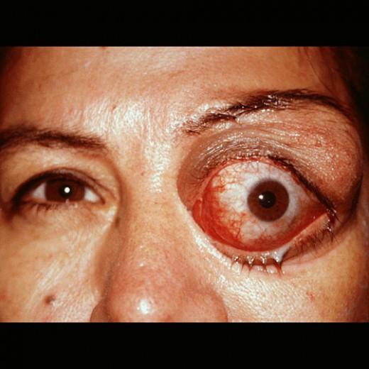 Echinococcosis General Health Implications Morphology