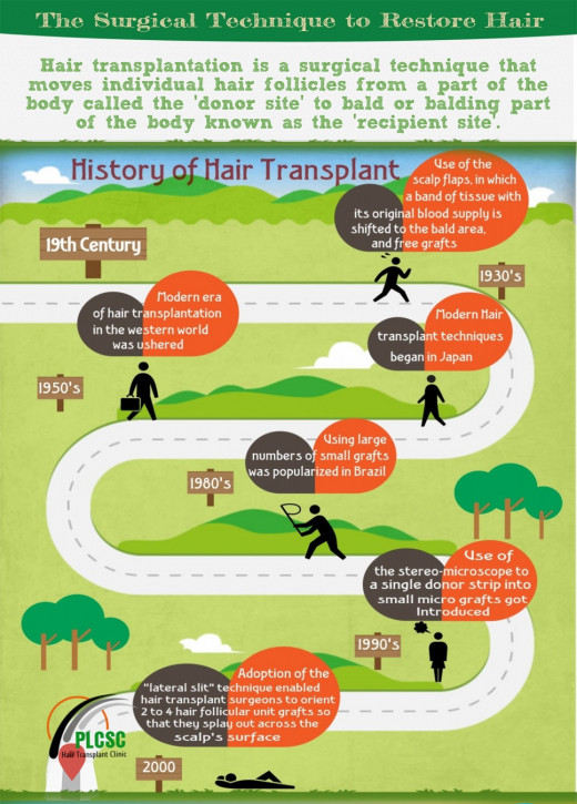 History of The Surgical Technique to Restore Hair