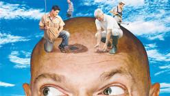 Why Choose Hair Transplant Over Hair Weaving