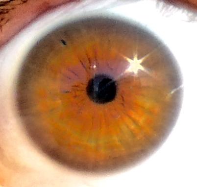 Right eye after YAG-PI