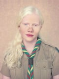The Truth On Being Albino