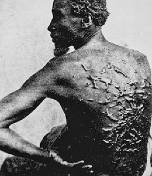 Lashing scars cover the back of this slave; punishments and their severity varied, but lashing was common for perceived insubordination