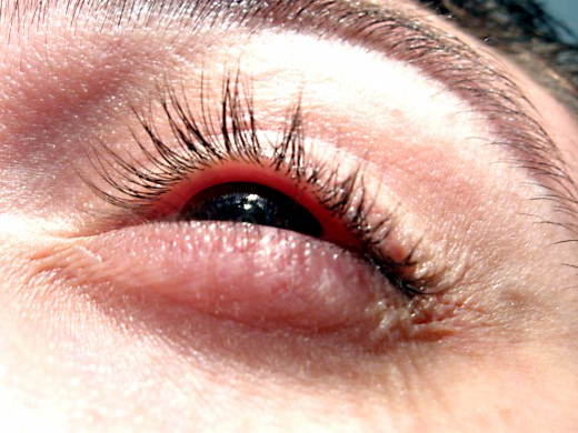 Dark circles around the eyes are a common beauty problem
