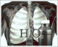 Hydrogen Peroxide Oxygen Therapy