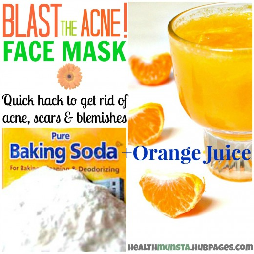 This is a great face mask to get rid of acne, blackheads, pimples and wipe out acne scars! Orange juice + baking soda, use once in 3 days.