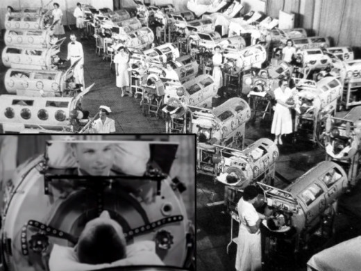 Polio victims forced to rely on iron lungs to help them breathe. INSET: In the machine you have to use a mirror to look around.
