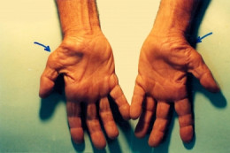 Carpal Tunnel Syndrome is very painful