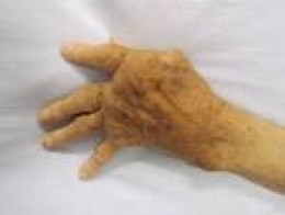A hand affected by osteoarthritis