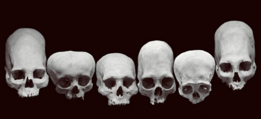 There is no doubt about the wide variation in the human skeleton and skull. Is this a product of our own manipulation or that of some outside force with their own agenda?
